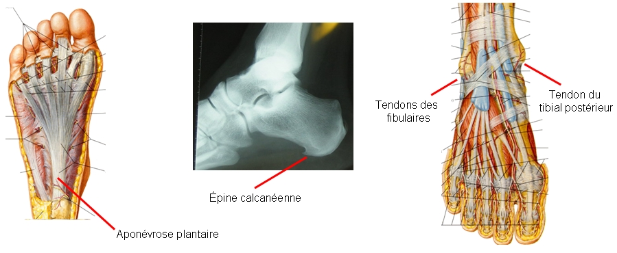 épine calcanéenne, tendinopathie, tendinite d'Achille